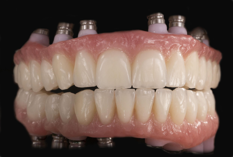 prothesiste dentaire en guyane Le prothésiste dentaire fabrique des prothèses (couronnes, bagues, appareils dentaires) à partir des empreintes prises par le dentiste, il façonne des moules et utilise la céramique, des matériaux composites et des métaux précieux.